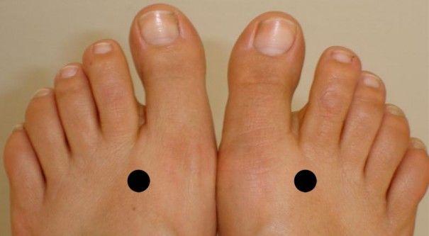 Feet Pressure Points to Control Diabetes