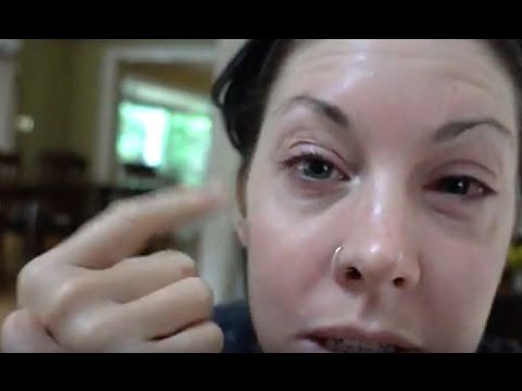 BEING NORMAL ON A SUNDAY- SWOLLEN FACE DLB 6-5-16