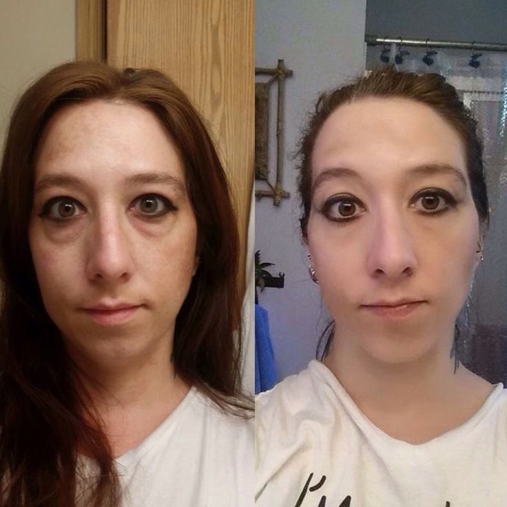 Instantly Ageless results from a teammate!  Free sample www.getafreeone.com