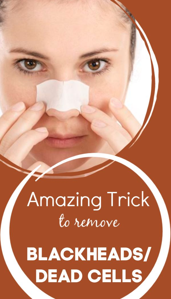 Amazing trick to remove blackheads and dead cells; and get clear skin in just 5 minutes
