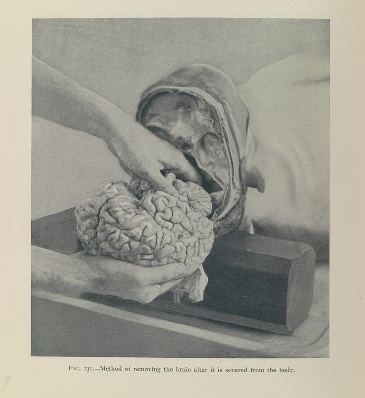 theories of criminology and the departed During the early 20th century, a revival of interest in phrenology occurred, partly because of studies of evolution, criminology and anthropology (as pursued by cesare lombroso) the most famous british phrenologist of the 20th century was the london psychiatrist bernard hollander (1864–1934.
