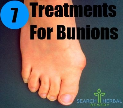 5 Remedies For Bunions - Natural Treatments & Cure For Bunions | Search Herbal & Home Remedy
