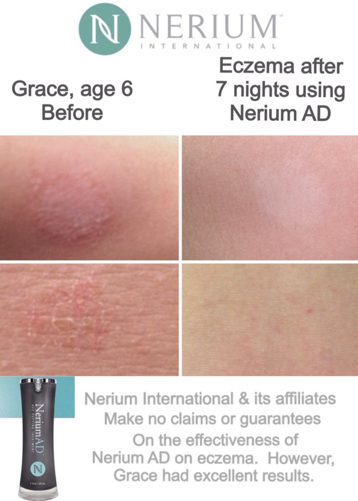 results with Nerium AD. Try it and see!