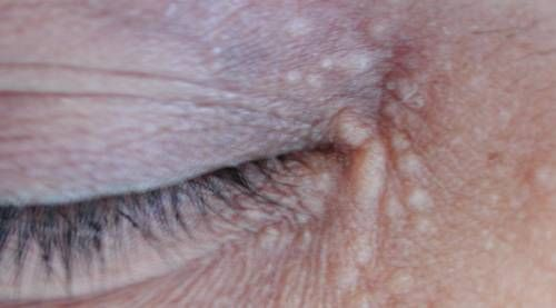 Like other warts, eyelid warts are triggered by viral infections. There are 3 primary causes of warts on eyelids.