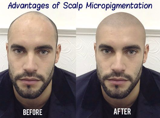 Scalp micropigmentation has increasingly become an important procedure to combat hair loss and balding issues. Know everything you need to before going in for the procedure.
