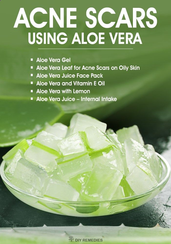 How To Clear Acne Scars Using Aloe Vera Diy Natural Home