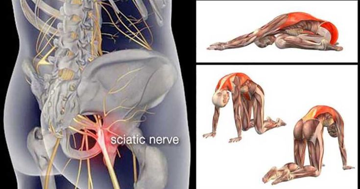 Those who have experiences sciatic nerve pain know how unbearable it is. The reasons for sciatica are numerous; some of them are spinal stenosis, ruptured disk, body injury, etc. When one experiences a sciatic nerve pain, the first things that need to be checked are the hips and the lower back. Dr. Mark Kovach says …