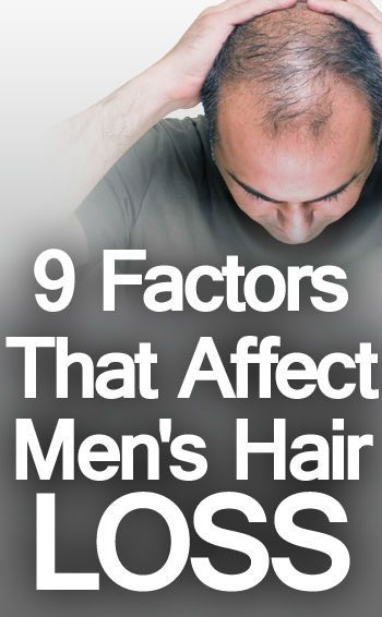 9 Factors that Affect Male Hair Loss | 6 Ways to Prevent Losing Your Hair or Balding