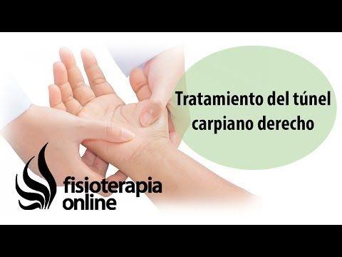 Tratamiento del síndrome de túnel carpiano derecho. - YouTube