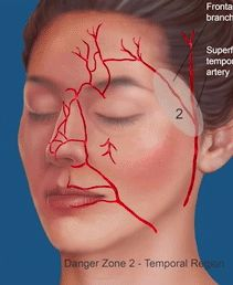 Facial Danger Zones: Techniques to Maximize Safety during Soft-Tissue Filler Injections