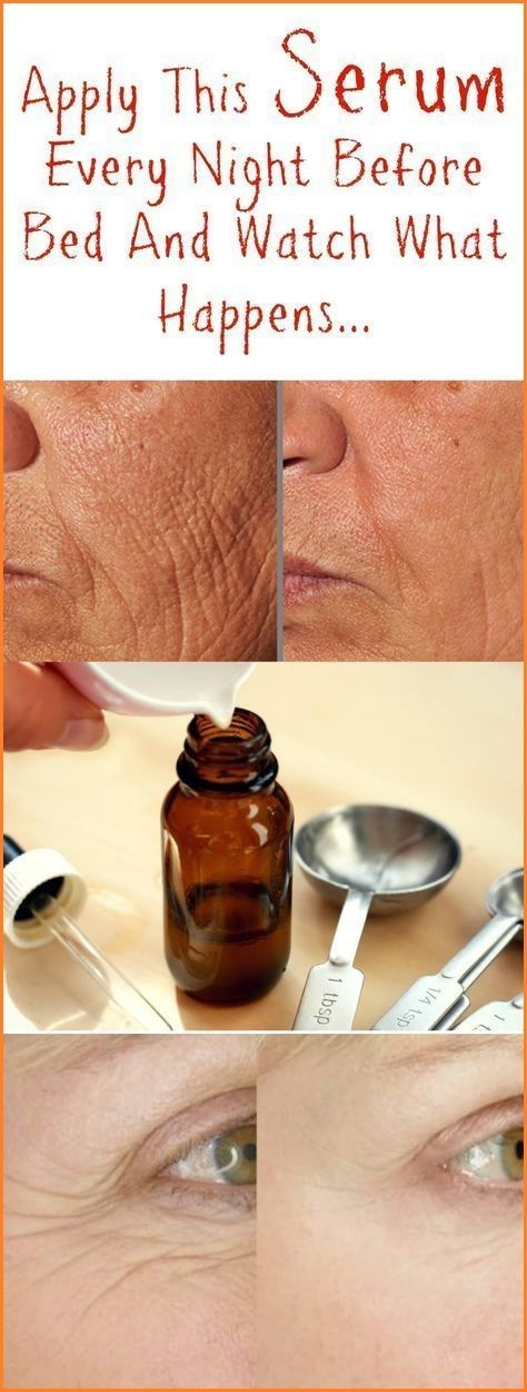 DIY ANTI AGING CREAM FOR WRINKLES, ELIMINATE All SPOTS