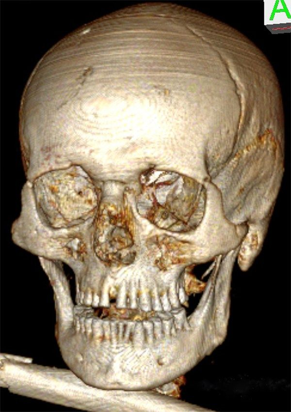 Oetzi the Iceman had bad teeth. Skull of the Iceman seen from the front. The genetic increased distance between the central front teeth as well as the severe dental abrasion can be seen, which led to a loss of more than half of the crowns in the front. Image: University of Zurich