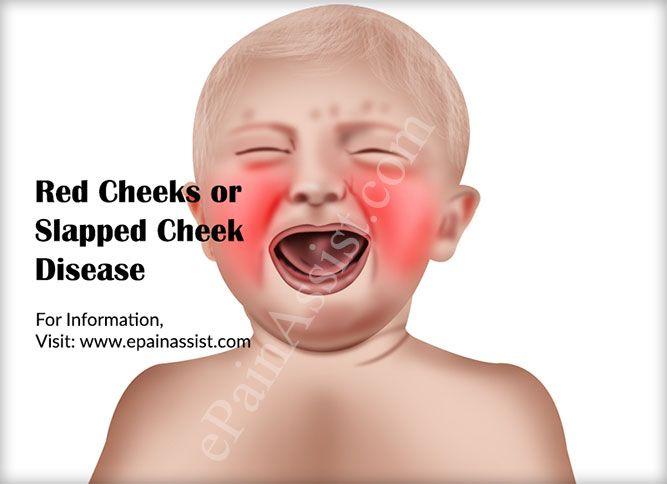 What is Red Cheeks or Slapped Cheek Disease?