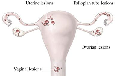In endometriosis, tissue that lines the uterus is found outside the uterus on organs inside the abdomen and pelvic region, and can rarely be found in the spine, brain and c-section scars. This tissue still responds to hormones and breaks down and bleeds during menstruation, trying to leave the body. However, since it is not in the uterus, the blood and tissue cannot leave, inflaming and scaring the regions of the body it is forced to stay in. Article from EmpowHer.