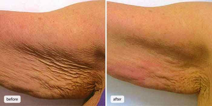 Arm liposuction results 9 – Liposuction before and after