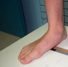 flat foot--causes, prevention, and treatment