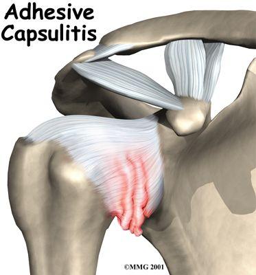 Adhesive Capsulitis and Frozen Shoulder