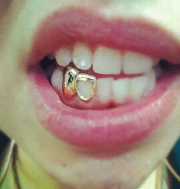 Gold teeth nigga                                                       …