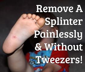 It Keeps Getting Better: Remove A Splinter... Without Tweezers!