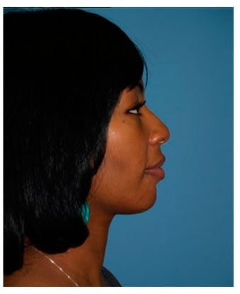 Patient #1 (After): Chicago Chin Implant - http://www.goldcoastplasticsurgery.com/photo-gallery/facial-implant-photos/facial-implants-patient-1/