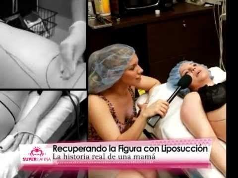 Liposuccion de Piernas (Muslos) y Brazos. - http://dietasparabajardepesos.com/blog/liposuccion-de-piernas-muslos-y-brazos/
