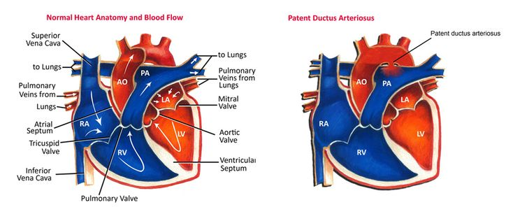Left To Right Shunt Lesions: Patent Ductus Arteriosus (PDA) & Eisenmenger Syndrome
