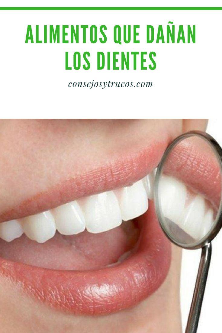 ¿Cuáles son los alimentos que dañan los dientes?