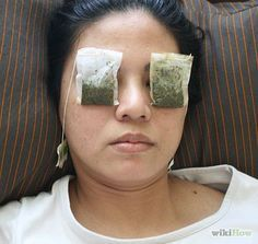 12 Quick And Safe Ways To Get Rid Of A Stye