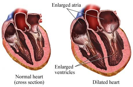 Reduce your chances of heart failure