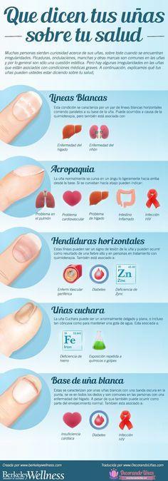 Lo que dicen tus uñas respecto a tu salud – Infografía | Decoración de Uñas - Manicura y Nail Art