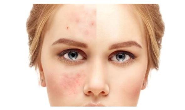 أفضل أنواع صابون الكبريت لتبييض الوجه وعلاج حب الشباب How To Remove Pimples Pimples Aloe Vera Face Mask