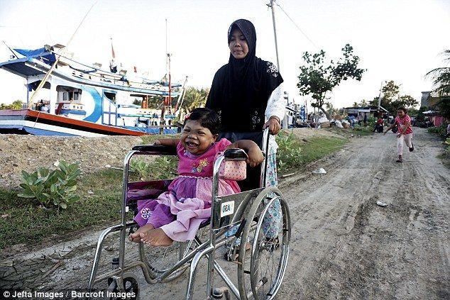 Penyakit Langka Gadis Aceh Berusia Dewasa Tapi Seperti Balita