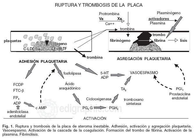 MANEJO DEL INFARTO AGUDO DE MIOCARDIO CON SUPRADESNIVEL DEL ST | Medicina Interna al día