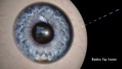 The 4 steps of the z-lasik procedure :: OFTUM - Laser eye surgery