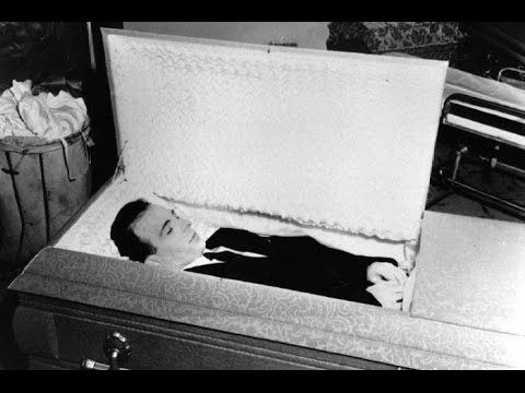 Autopsy Photos Archives - Weird Picture Archive