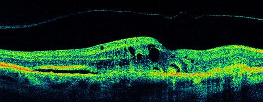 OCT Scan Of Age Related Macular Degeneration