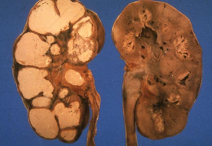 Riñones afectados por tuberculosis renal