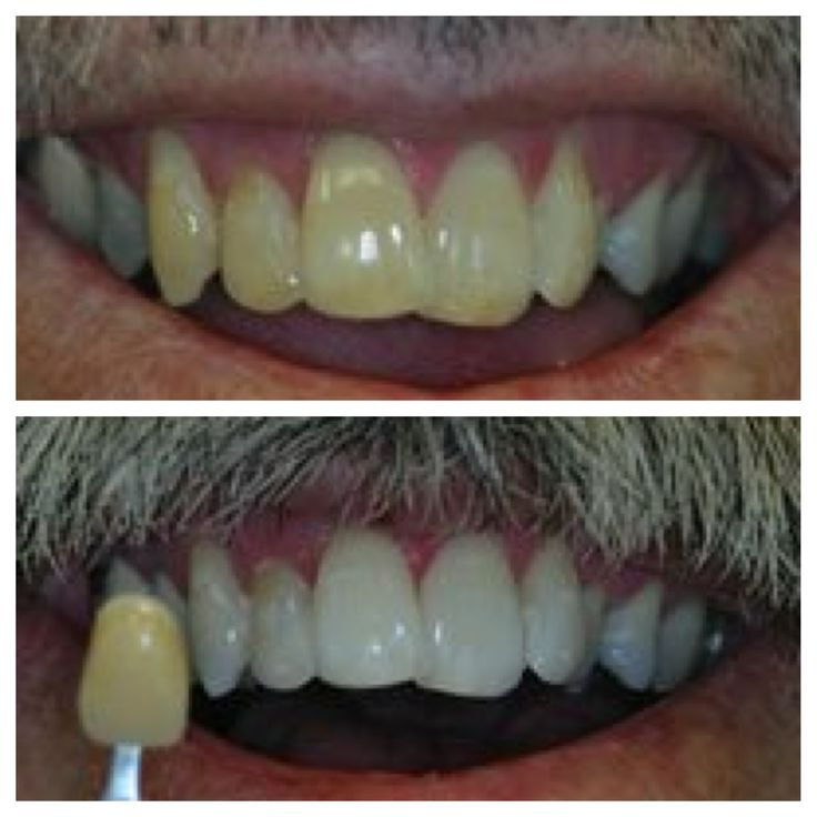 The before and after pictures with Zoom Whitening.  It only takes 60 minutes to have your teeth turned into the pearly whites you have always dreamed of.