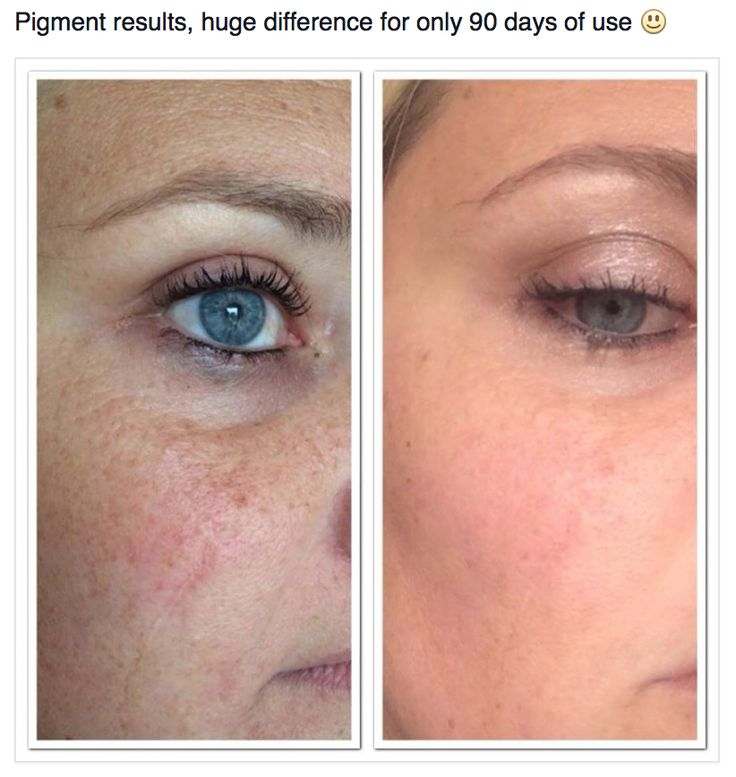 Changes in pigmentation within 90 days of use. www.universalskincare.jeunesseglobal.com