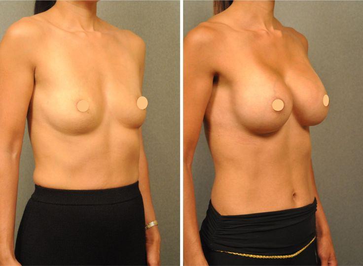 Die Salbe für die Erhöhung der Brust die Rezensionen