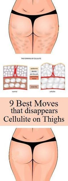 Are you irritated on your thigh fat? Do you want to lose your cellulite on thighs? Most of the women and girls try