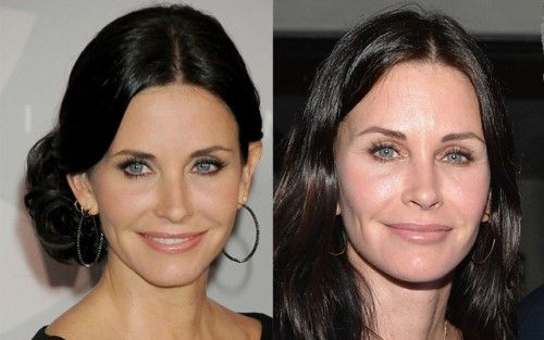 Courtney Cox before and after plastic surgery-bestcelebritysurgery.com