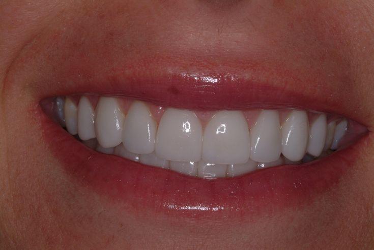 #dentaltreatmentindia #dentistservicesjalandhar #dentalcareindia #bestdentalcareinJalandhar #topdentalclinicsinpunjab #topdentalclinicsinjalandhar #dentistservicesjalandhar  www.drguptasdentalcareindia.com Cont:91-9023444802