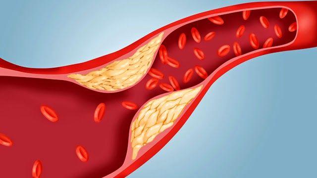 Curata Vasele Sangvine de Colesterol in 40 de zile | Secretele