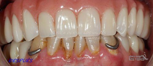 Caso clínico de éxito: Implantes dentales Straumann con poco hueso en maxilar superior