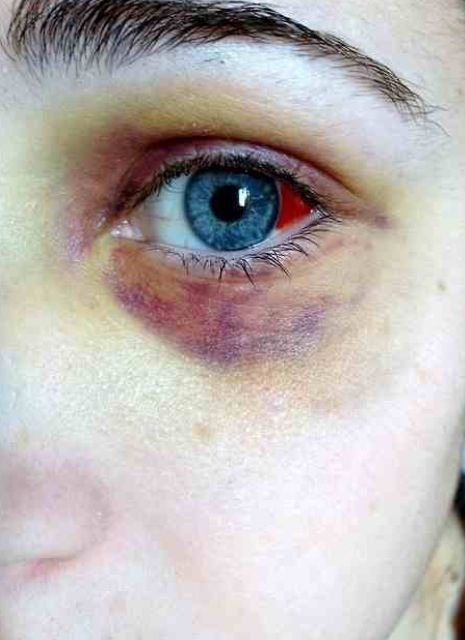 Makeup Ideas bruise makeup : Bruised Eyes, Black Eye Bruise Makeup, Blood Vessel, Black Eyes Bruise ...