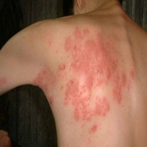 Easy and Effective Home Remedies For Shingles