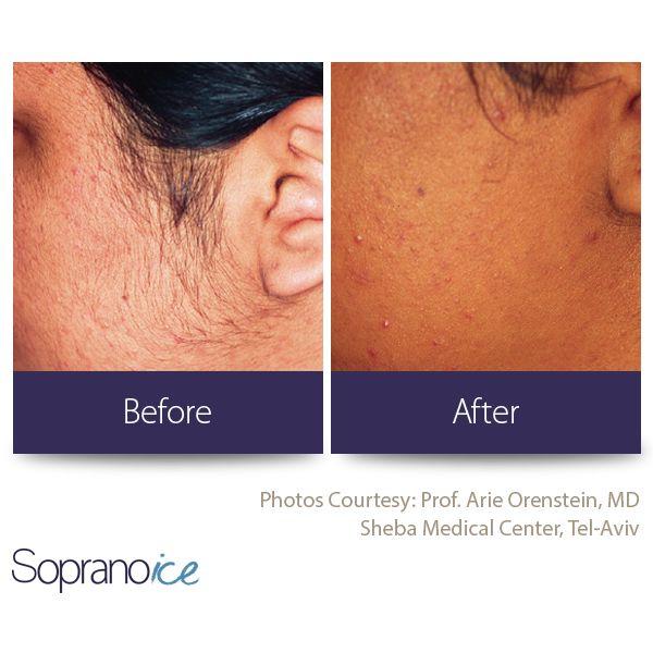 Soprano ICE | Laser hair removal | Alma Lasers