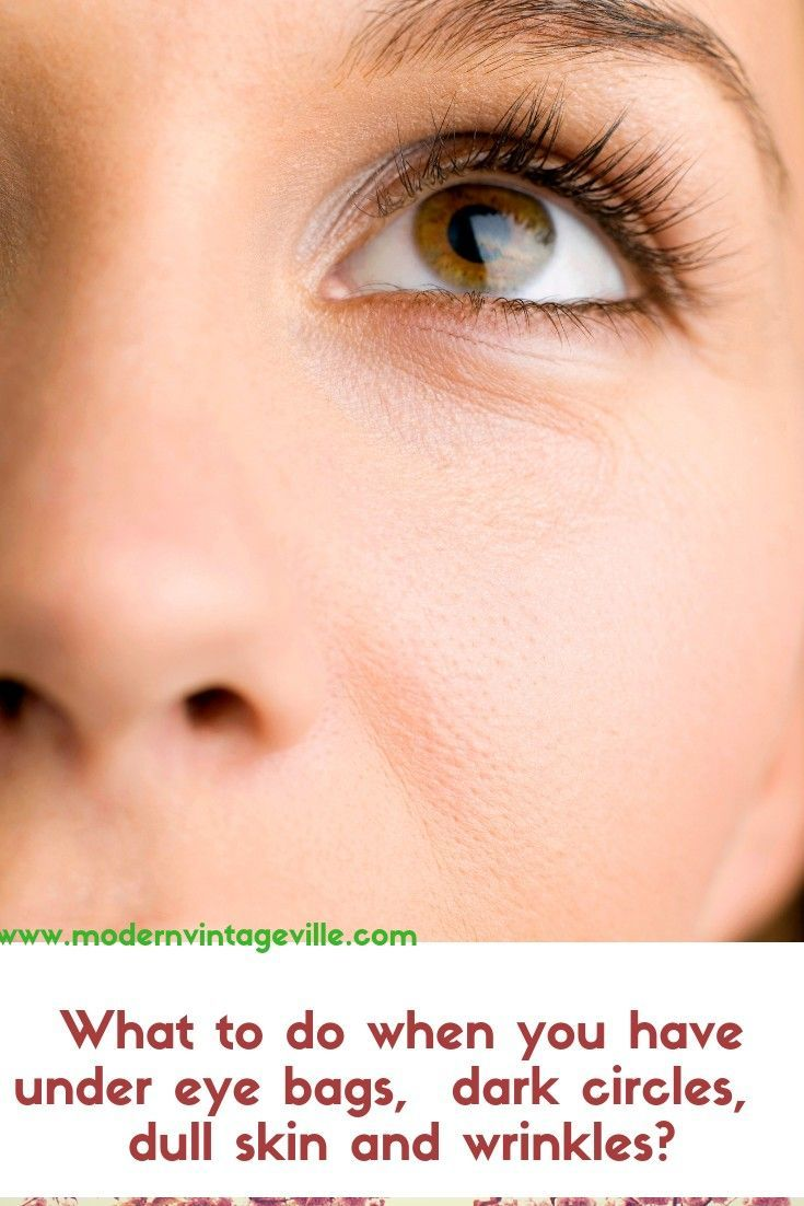 What Causes Dark Circles Under Your Eyes And How To Get Rid Of Them Under Eye Bags Eye Care Dull Skin