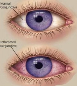 How to treat conjunctivitis - pinkeye